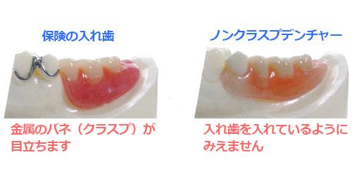 ノンクラスプ義歯画像